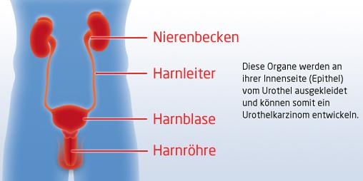 Urothelkarzinom | | Arbeitskreis Urologische Onkologie